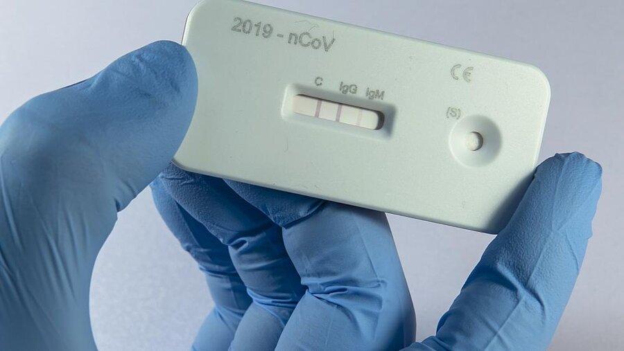 تست آنتی بادی برای کرونا مصونیت در برابر ویروس را نشان نمی دهد